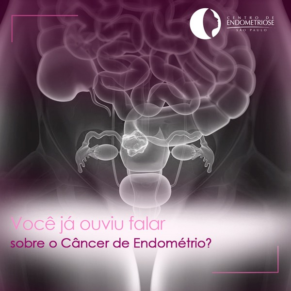 Cancer de endometriose_endometriosesp